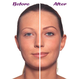 Medical Makeup on Permanent Makeup Is Simple And Safe Method  Which Has Been Developed